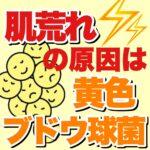 肌荒れの原因は黄色ブドウ球菌?!